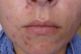 Фото демодекоза на лице у женщин