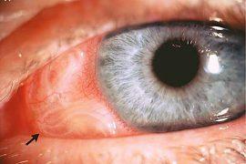 Глисты в глазах у людей: симптомы патологии, фото и методы лечения