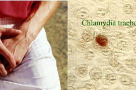 Хламидии у мужчин: лечение, первые признаки и диагностика