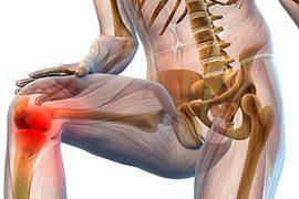 Хламидийный артрит: основные причины, симптомы и лечение патологии