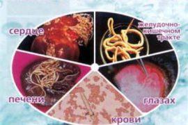 Как избавиться от паразитов в домашних условиях