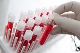 Как правильно сдавать анализ крови на глисты