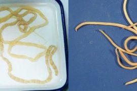Как узнать, есть ли глисты у человека?