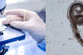 Как выглядят глисты острицы у человека?