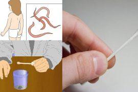 Как сдавать анализ на яйца глист