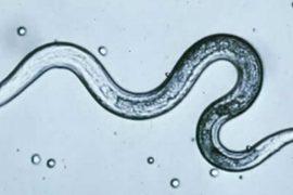 Классификация и симптомы токсокароза