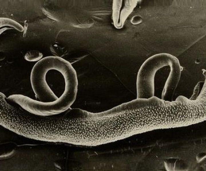 Классификация шистосом, симптомы и лечение инвазии