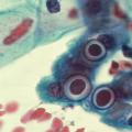 Чем лечить хламидиоз — препараты
