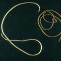 Паразит Конский волос — симптомы и лечение