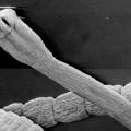 Как избавиться от паразитов в организме человека — лучшие способы