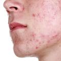 Демодекоз у человека: симптомы и лечение