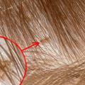 Фото вшей в волосах у детей