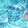 Диагностика хламидиоза у человека
