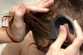 Cредства от вшей и гнид — самые эффективные средства от педикулеза