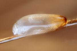 Как избавиться от гнид на волосах