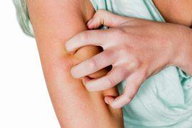 Чесотка: симптомы, признаки и лечение