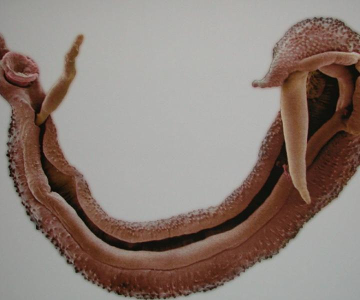 Шистосома: виды, особенности заболевания