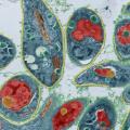 Что такое токсоплазмоз и как он проявляется