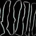 Бычий цепень: особенности паразита, симптомы, лечение