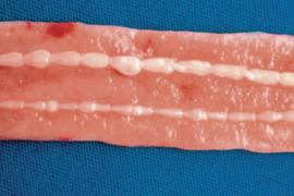 От чего появляются глисты у человека