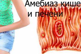 Симптомы амебиаза кишечника и печени