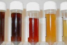 Сколько дней может быть действителен соскоб на энтеробиоз