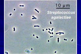 Стрептококк агалактия в мазке или моче у мужчин и женщин