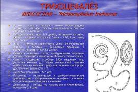 Трихоцефалез: симптомы и лечение