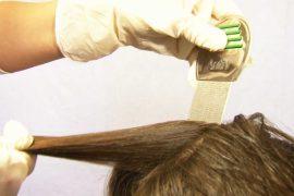 Вши в волосах: методы определения и способы лечения