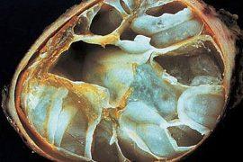 Эхинококк: этапы развития, симптоматика и лечение