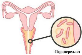 Гарднерелла у мужчин: симптомы и лечение