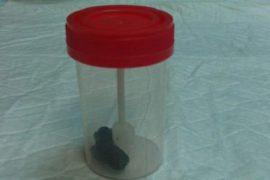 Как проводится копрологическое исследование кала, подготовка к анализу