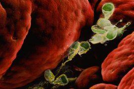 Лямбли в организме человека: симптомы, лечение, диета