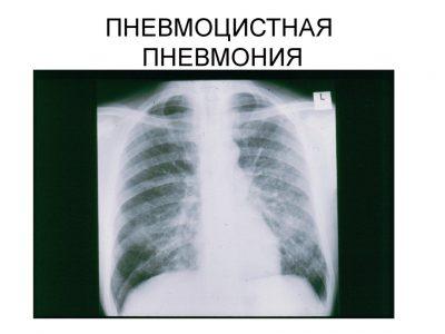 Причины и симптомы пневмоцистной пневмонии, лечение и профилактика