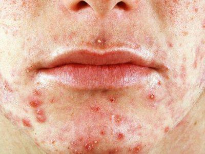 Эпидермальный стафилококк: симптомы и лечение