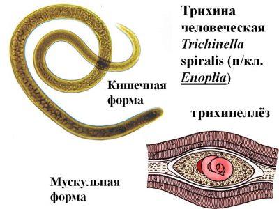 Трихинеллез у человека: пути заражения, симптомы и лечение