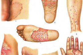 Виды и причины микоза, диагностика и методы лечения