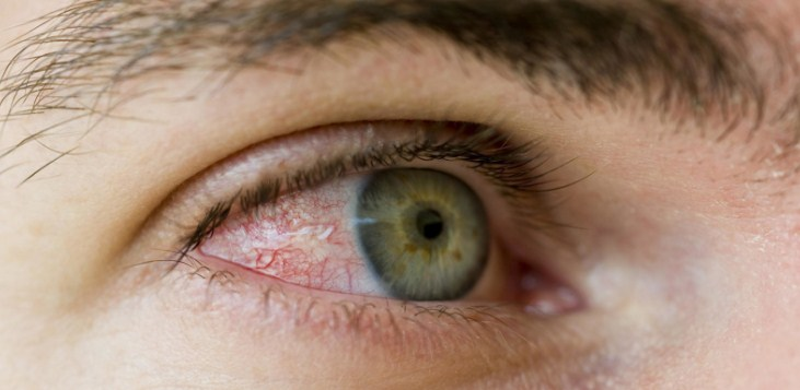 покраснение сетчатки глаз