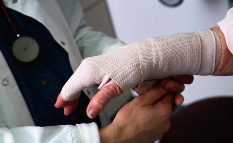 перелом руки