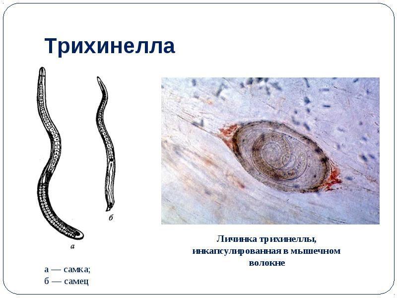 личинка трихинеллы