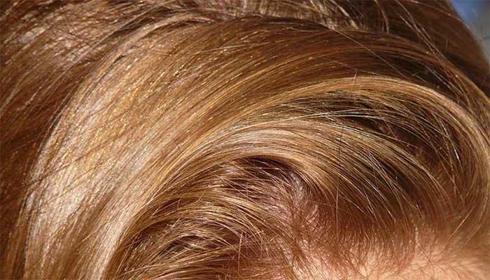 выведение гнид с длинных волос