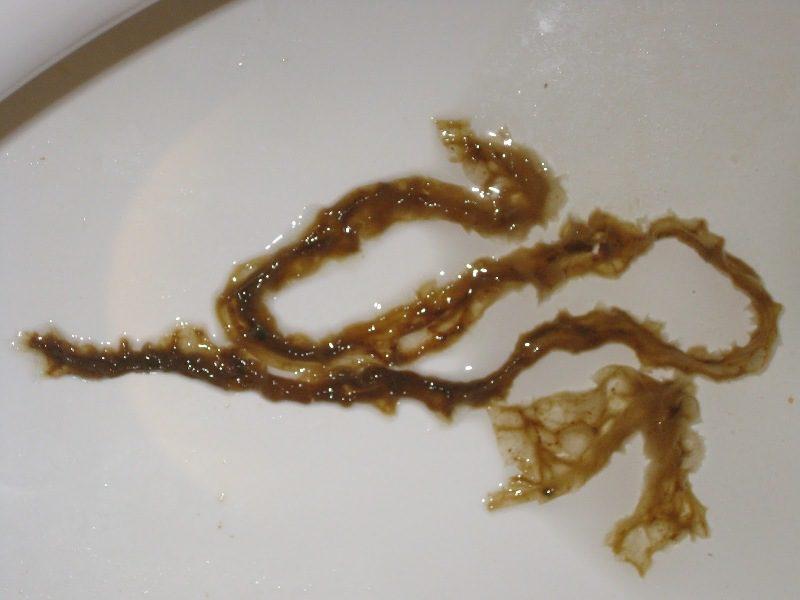 Что такое эхинококкозленточный гельминт