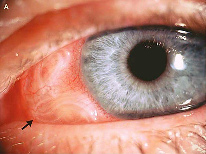 Глисты в глазу у человека