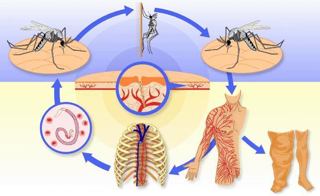 Что такое филяриоз