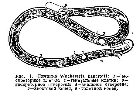 Вухерерия Банкрофта