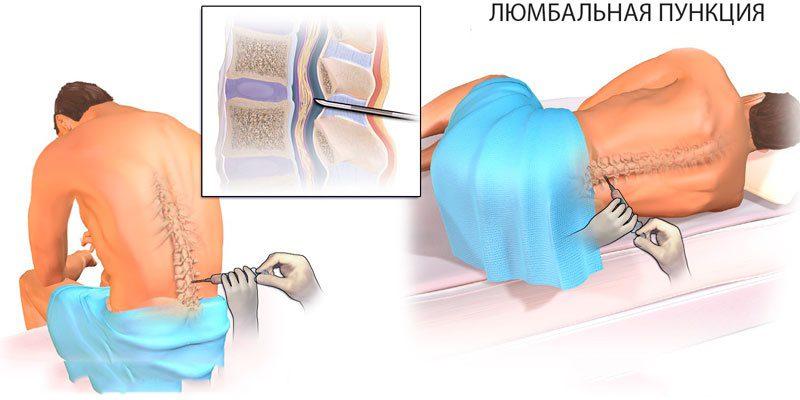 забор спинномозговой жидкости