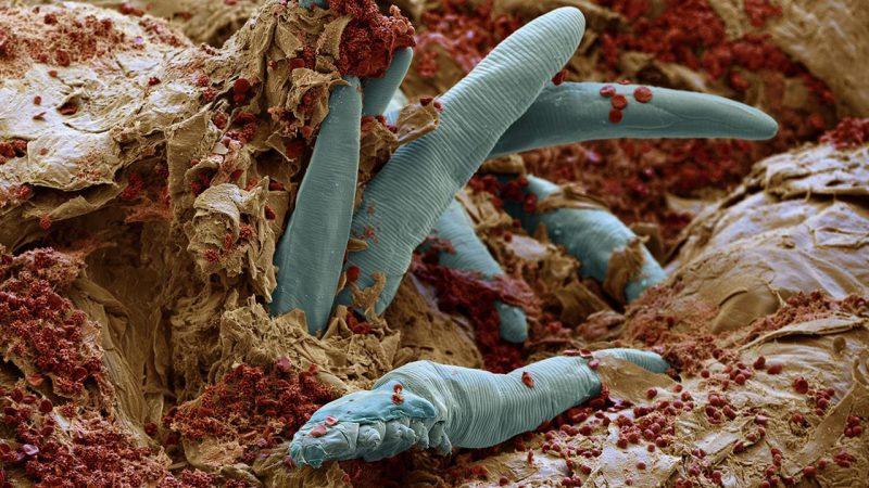 Demodex folliculorum