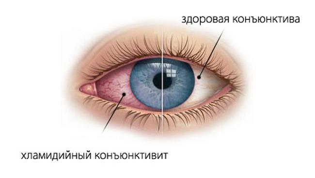 Симптоматика хламидиоза