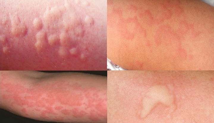 аллергические реакции на глистов