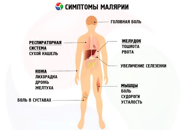 симптомы малярии у человека